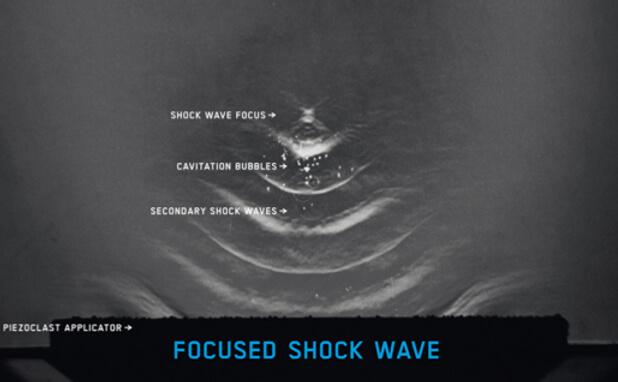 focused shock waves