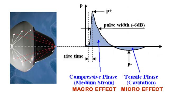 macro and micro compressive phases